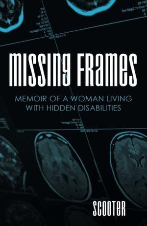 Missing Frames
